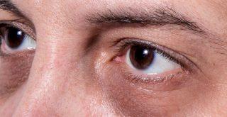 5 Ways to Get Rid Of Melanin Pigments around the Eyes